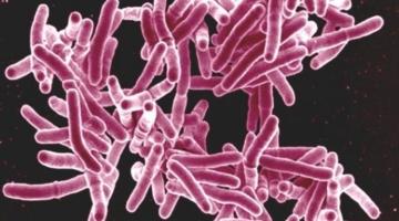 Nyt middel mod tuberkulose måske på vej