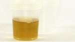 Bedre urinanalyse med nyt hjælpestof